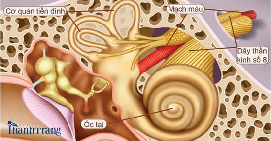 Nguyên nhân ù tai do rối loạn tiền đình